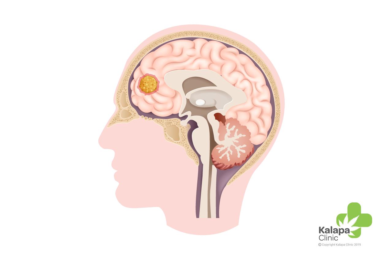 Cannabis para tratar tumores cerebrales