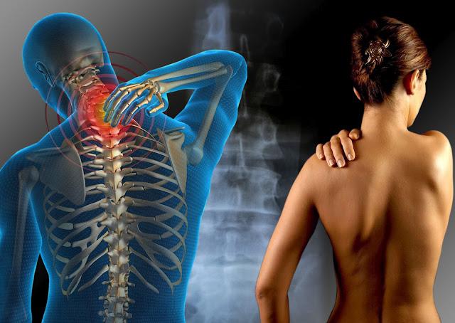 Cannabis ayuda a disminuir síntomas de la esclerosis lateral amiotrófica (ELA)