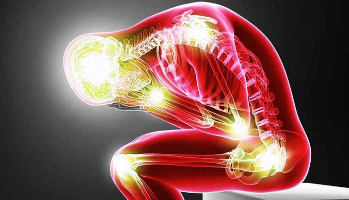Estudio revela que la marihuana alivia el dolor por fibromialgia