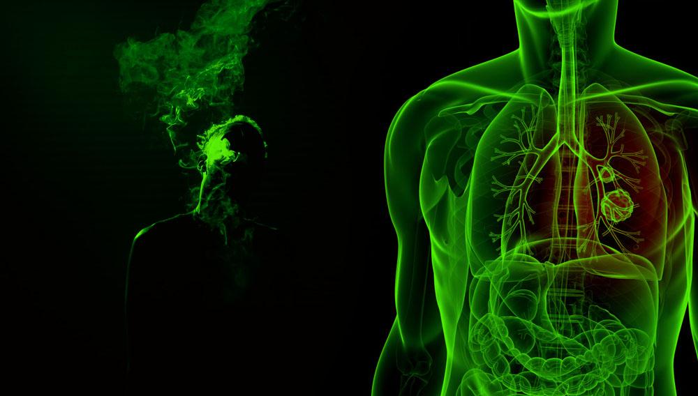 Estudio: THC y CBD inhiben la proliferación de células cancerígenas cáncer en pulmón