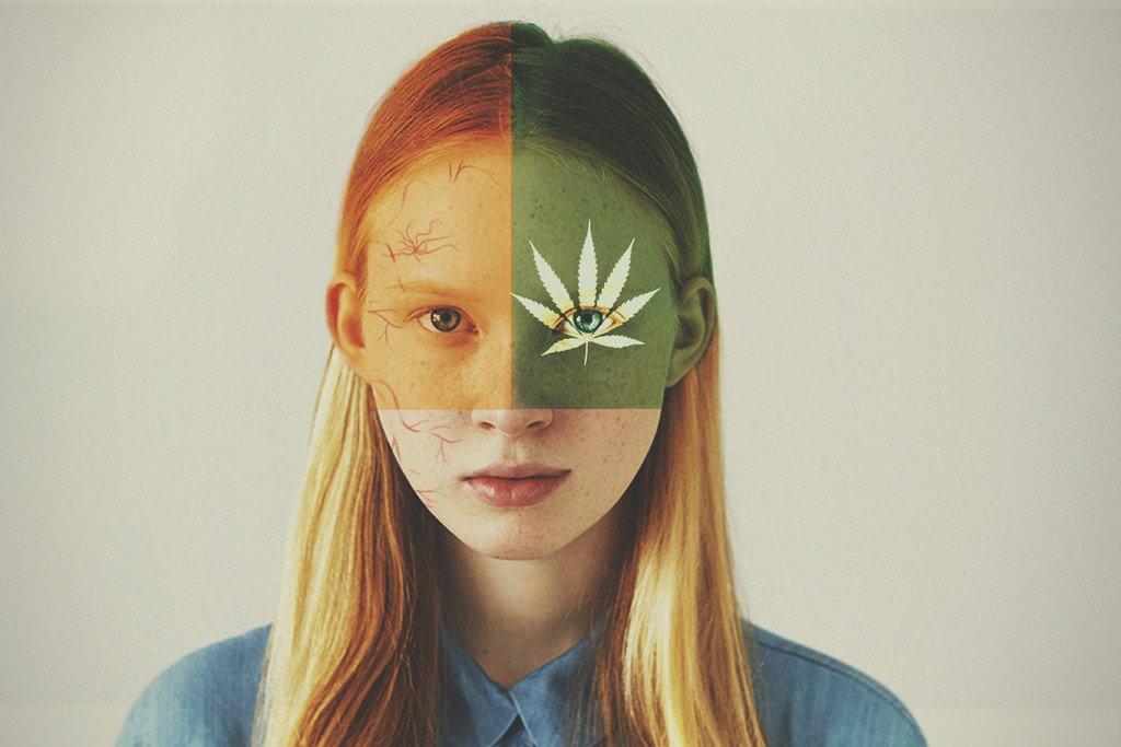 La migraña puede tratarse con cannabis terapéutico