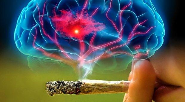 No hay asociación entre el consumo de cannabis y el accidente cerebrovascular