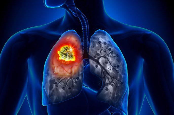 Cáncer de pulmón: cannabis medicinal como opción terapéutica